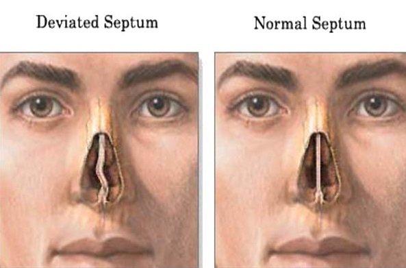 septum deviasyon
